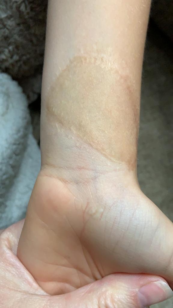 treadmill friction burn skin graft healing after 4yrs